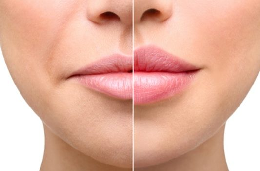 persons lips