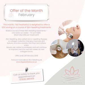 February Offer Micro Needling Treatment