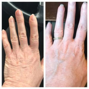 Hands following Carboxytherapy treatment