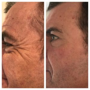 Crow's Feet treated with wrinkle relaxation injections