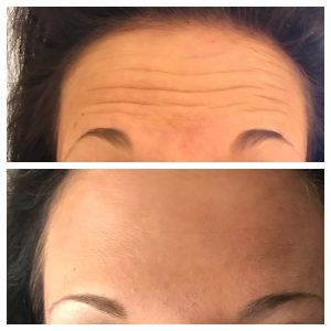 Before and after: A forehead treat with wrinkle relaxation injections