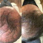 TGC Male Hair Treatment with Carboxytherapy