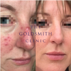 Obagi Acne Rosacea treatment before and after