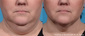 Morpheus8 Jowl treatment before and after